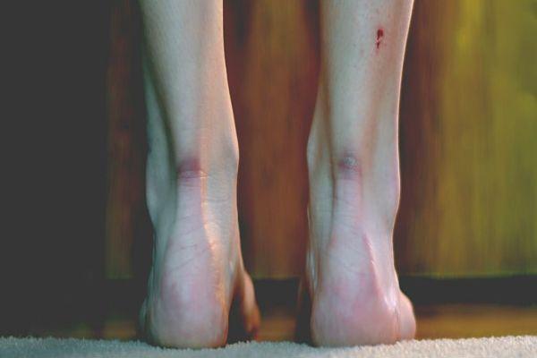 Научниците откриле како да заздрават раните без да останат лузни