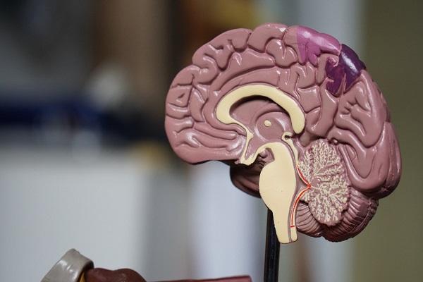 Луѓето со половина мозок функционираат изненадувачки добро
